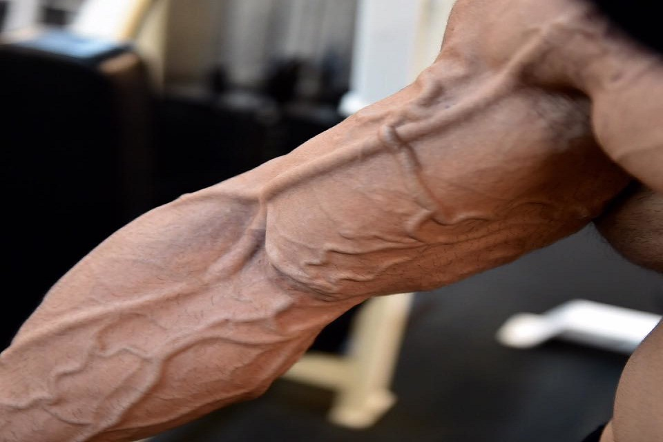 Learn the Secrets on How You Can Get Vascular Arms